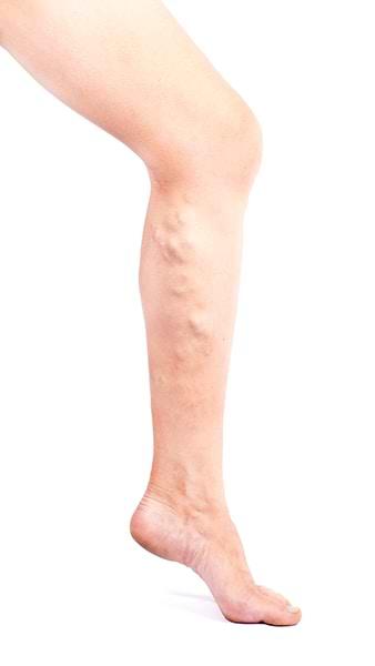 Varices debido a mala circulación en las piernas