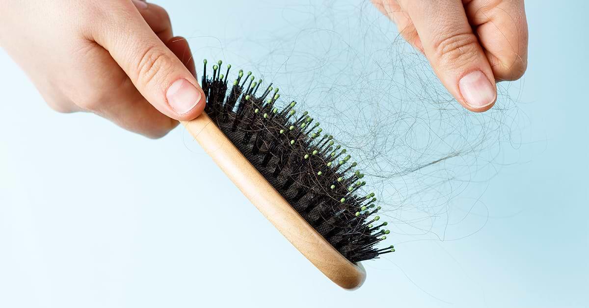 Caída del cabello en mujer