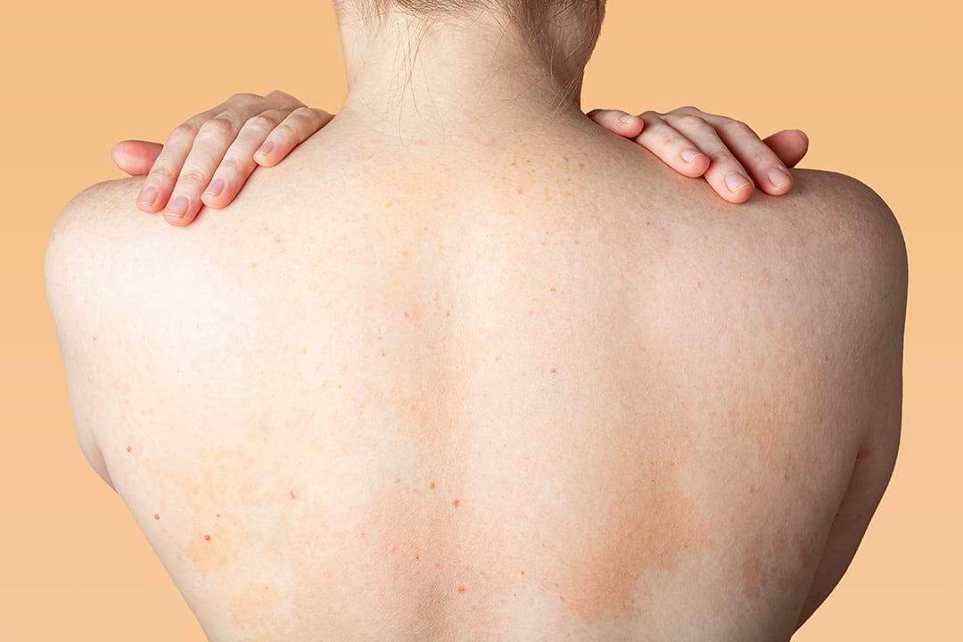 Dermatitis atópica en adultos