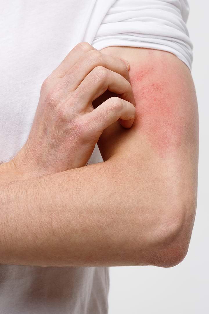Cómo prevenir la piel atópica